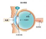 視力回復以前に日本人の角膜が危ないですがスマホが原因ですか